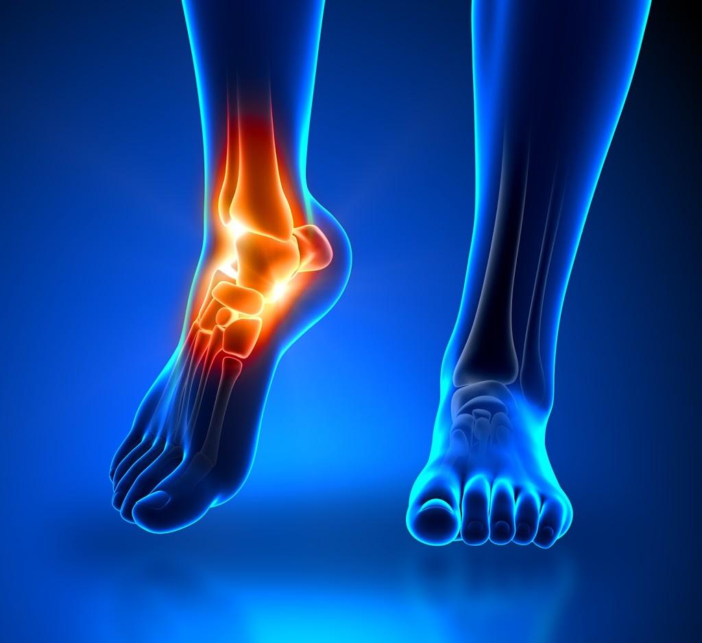 Salus Foot Surgeon   doctor   Suite 5E John Flynn Medical Centre, John Flynn Private Hospital, 42 Inland, Dr, Tugun QLD 4224, Australia   1300105464 OR +61 1300 105 464