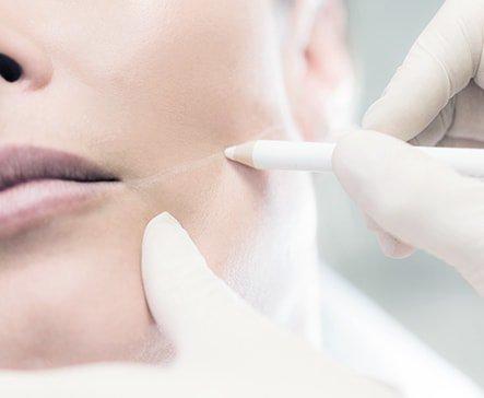 Laser Clinics Australia - Dubbo   hair care   Shop T131 Orana Mall Shopping Centre, 56 Windsor Parade, Dubbo NSW 2830, Australia   0267881202 OR +61 2 6788 1202