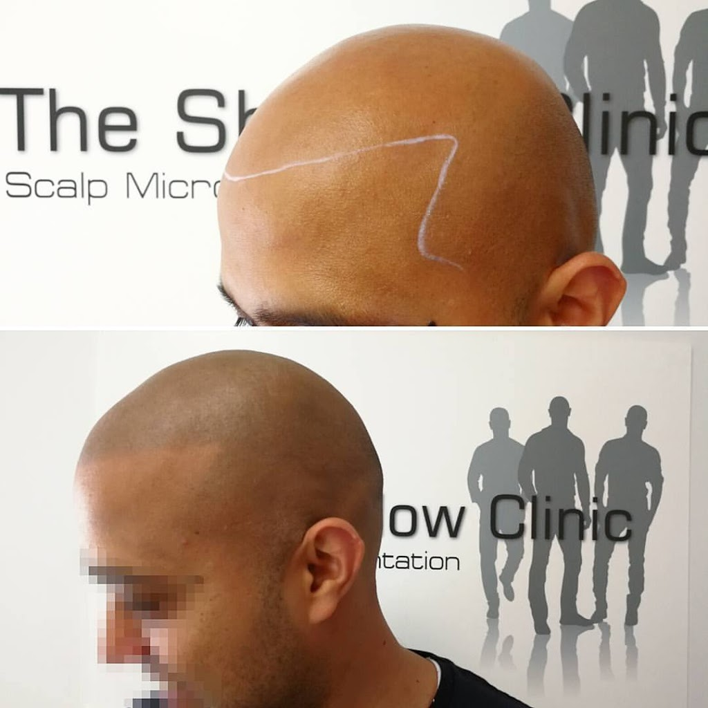 The Shadow Clinic Canberra   hair care   1C/39 Grimwade St, Mitchell ACT 2911, Australia   0468364200 OR +61 468 364 200