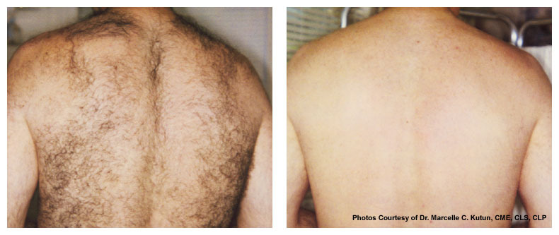 AK Laser Hair Removal Clinic | hair care | 17 Regent St, Maitland NSW 2320, Australia | 0412268441 OR +61 412 268 441