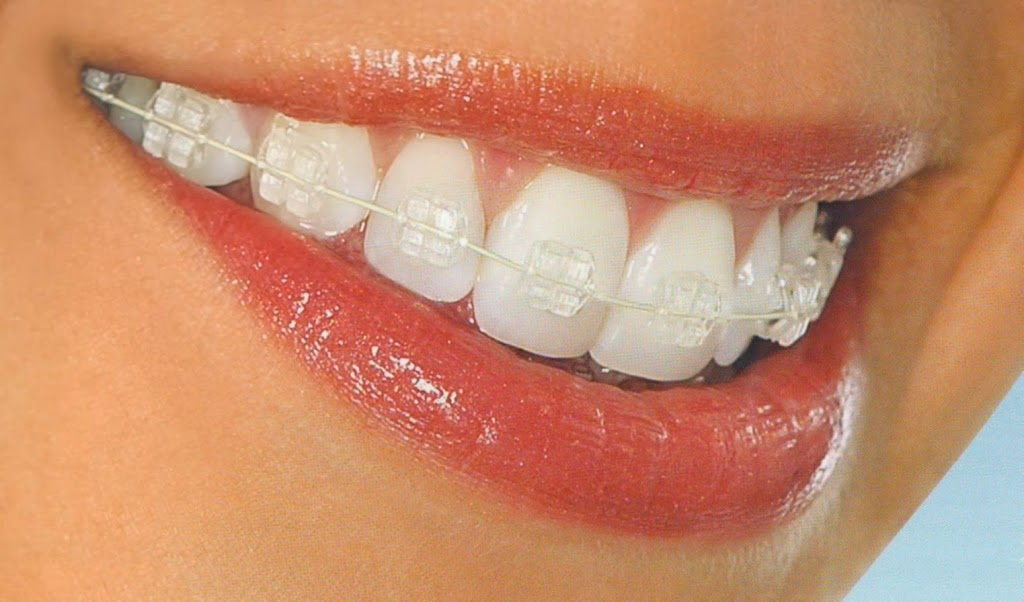 15 Dental   dentist   15 Canley Vale Rd, Canley Vale NSW 2166, Australia   0281025150 OR +61 2 8102 5150