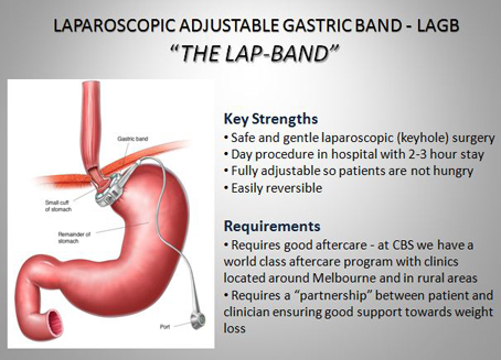 The Centre for Bariatric Surgery | doctor | 314 Warrigal Rd, Glen Iris VIC 3146, Australia | 0398051500 OR +61 3 9805 1500
