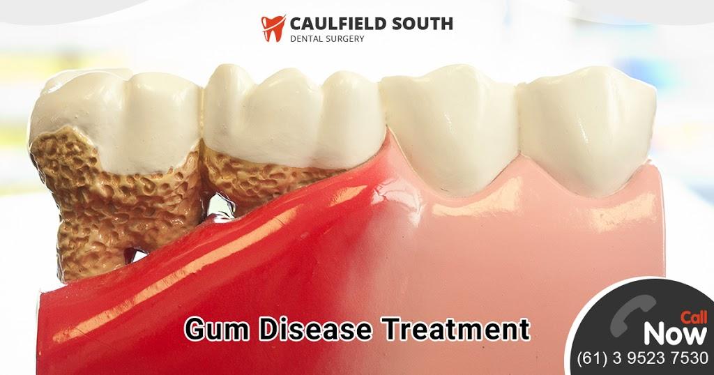 Caulfield South Dental Surgery 🦷 | dentist | 858 Glen Huntly Rd, Caulfield South VIC 3162, Australia | 0395237530 OR +61 3 9523 7530
