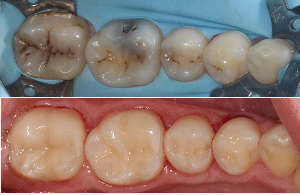Dr Tony Wu | dentist | 1909 Creek Rd, Cannon Hill QLD 4170, Australia | 0739021023 OR +61 7 3902 1023