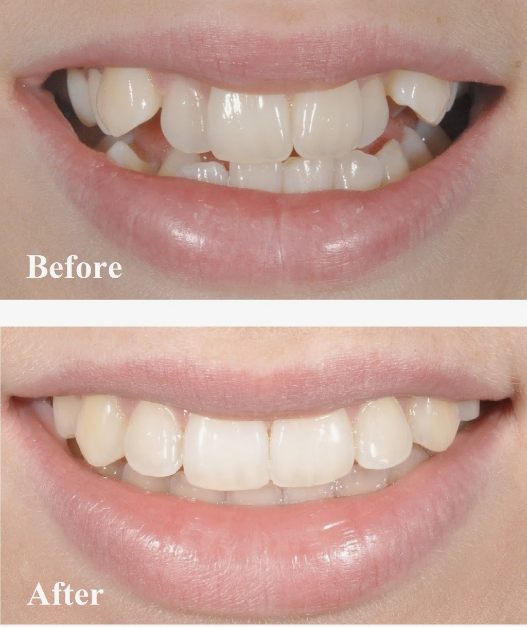 Kempsey Dental Centre   dentist   31 Smith St, Kempsey NSW 2440, Australia   0265631313 OR +61 2 6563 1313