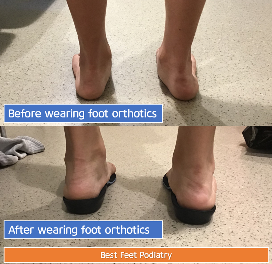 Best Feet Podiatry | doctor | 101/2 Rowe St, Eastwood NSW 2122, Australia | 0298583877 OR +61 2 9858 3877