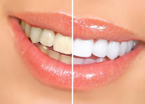 All Star Dental Laboratory | dentist | 5 Chandler St, Parkdale VIC 3195, Australia | 0395872791 OR +61 3 9587 2791