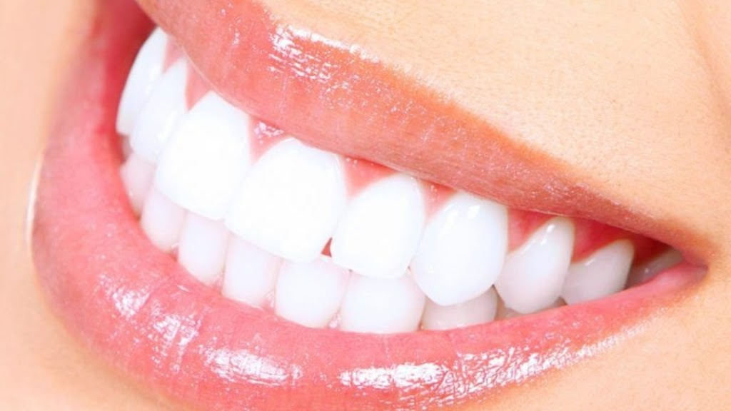 Shine smile | dentist | 21A Percy St, Fairfield Heights NSW 2165, Australia | 0444580007 OR +61 444 580 007