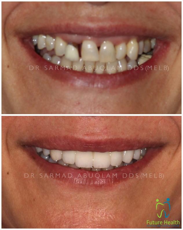 Dr Sarmad Abuqlam | Dentist | dentist | 142 Maribyrnong Rd, Moonee Ponds VIC 3039, Australia | 0390786259 OR +61 3 9078 6259