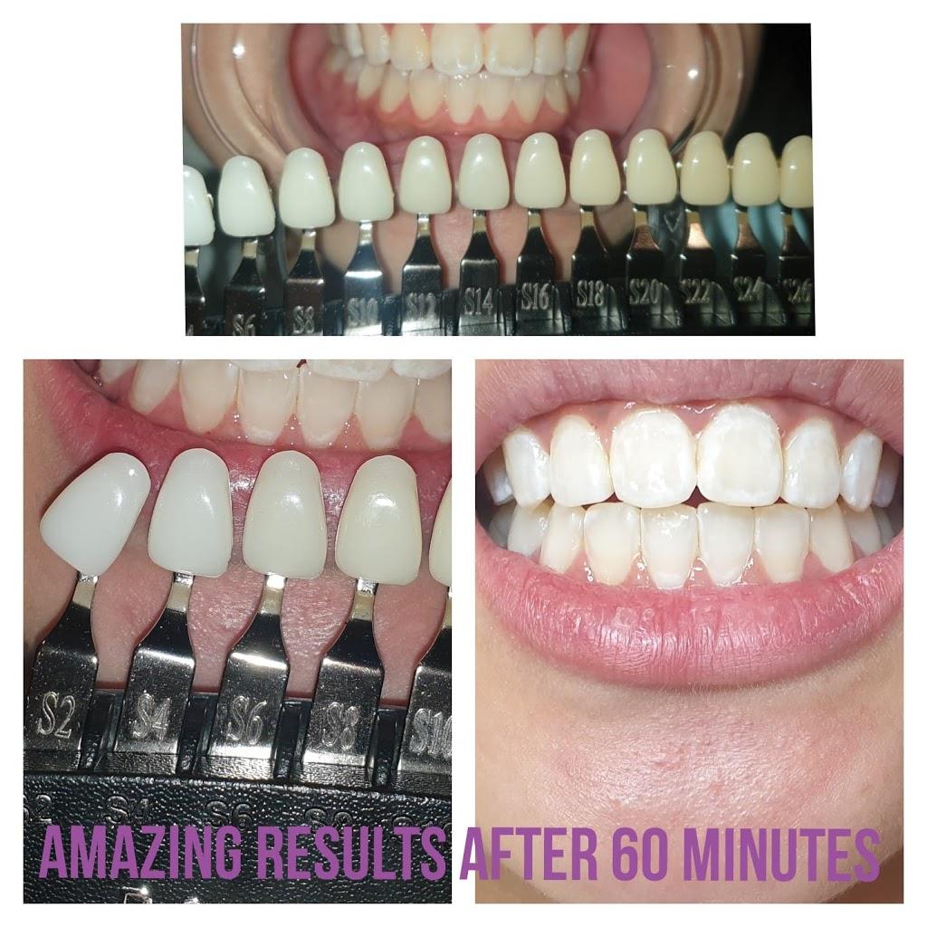 Envy Beauty Aesthetics Pty Ltd | dentist | First Ave, Hoxton Park NSW 2171, Australia | 0493109989 OR +61 493 109 989