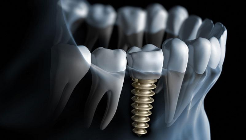 TARNEIT DENTAL CARE- Melbourne Dental Care Tarneit | dentist | 429 Sayers Rd, Tarneit VIC 3029, Australia | 0397494491 OR +61 3 9749 4491