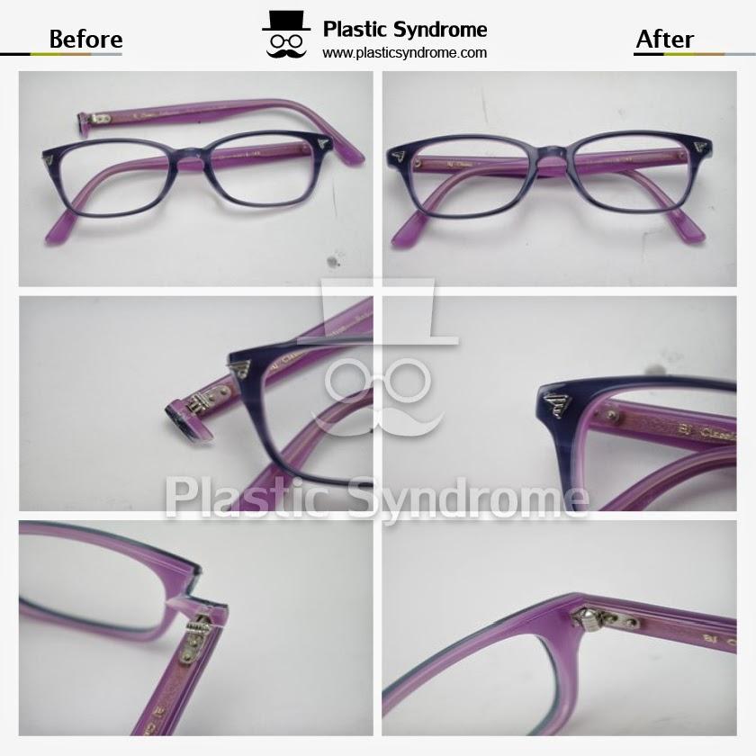 Plastic Syndrome | health | 1/11 Olga Ave, Horsham VIC 3400, Australia | 1800463172 OR +61 1800 463 172