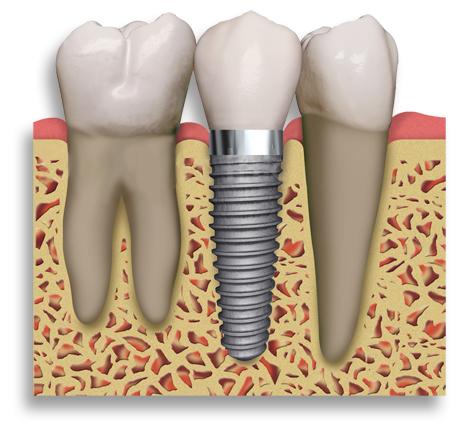 McDonald Dental   dentist   suite 4/70-72 Channon St, Gympie QLD 4570, Australia   0754811203 OR +61 7 5481 1203