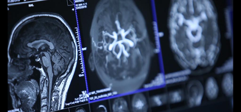 CAIRNS RADIOLOGY | BULK BILL | X-RAY CT SCAN ULTRASOUND MRI | We | doctor | 121 Sheridan Street (opp. Munro Martin Parklands, Cairns City QLD 4870, Australia | 0740426850 OR +61 7 4042 6850