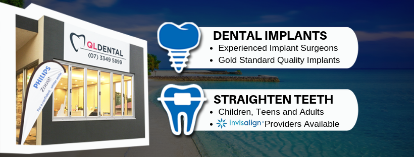 QL Dental | dentist | Shop 2/26 Norton St, Upper Mount Gravatt QLD 4122, Australia | 0733495899 OR +61 7 3349 5899