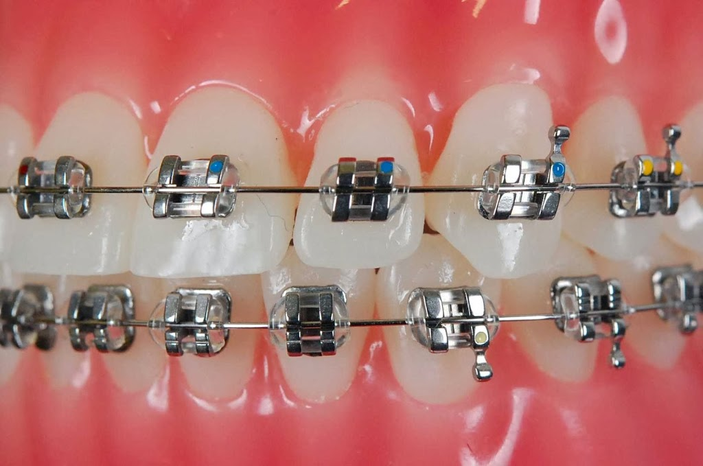 Dr Richard Pepperell Orthodontics | dentist | 206 Currumburra Rd, Ashmore QLD 4214, Australia | 0755647322 OR +61 7 5564 7322