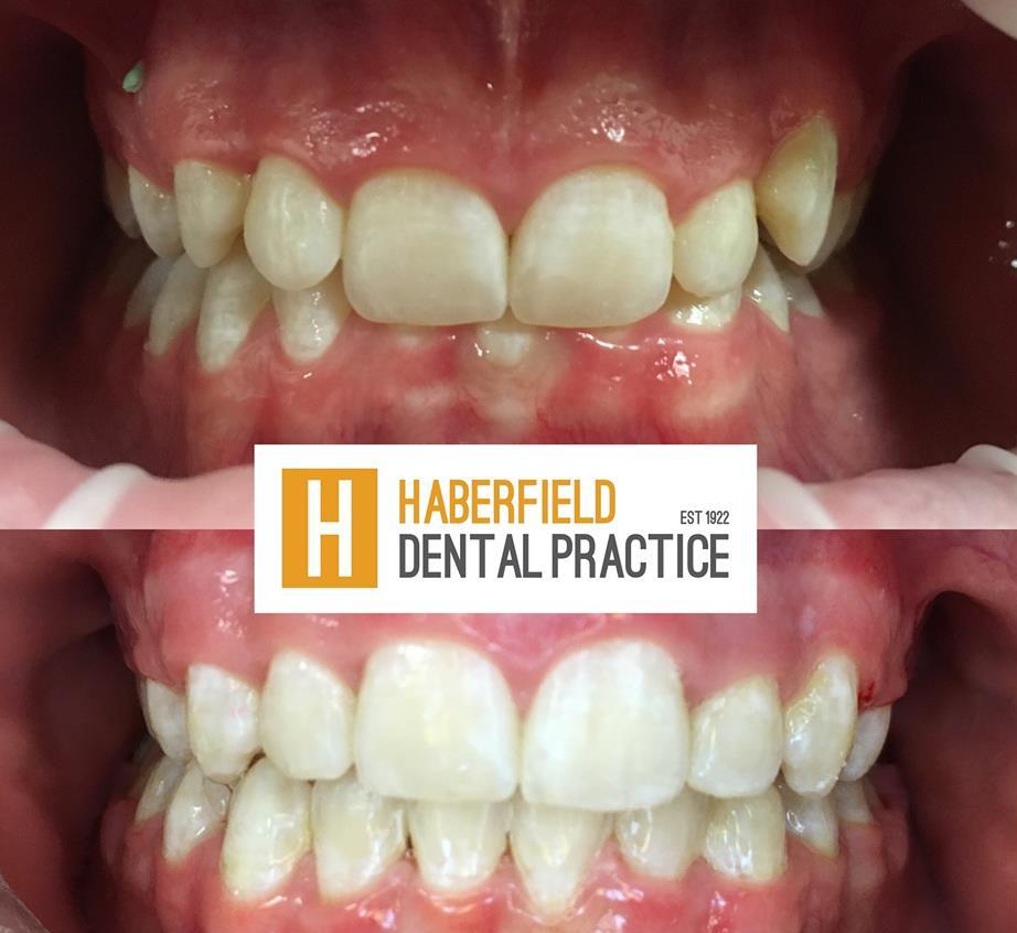 Haberfield Dental Practice | dentist | 102 Ramsay St, Haberfield NSW 2045, Australia | 0297978080 OR +61 2 9797 8080
